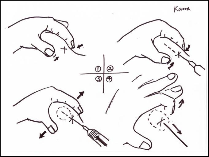 注入時のテクニック